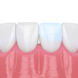 dental bonding illustration